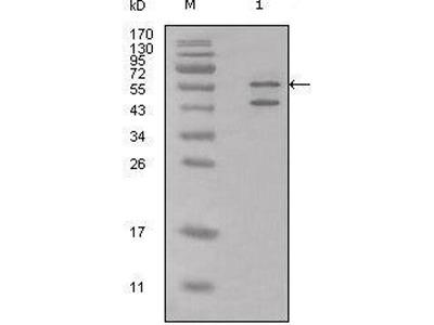 anti-Calreticulin (CRT) antibody