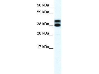anti-TRIM13 antibody
