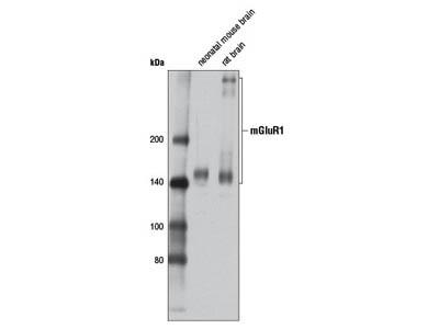 mGluR1 (D5H10) Rabbit mAb