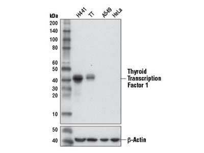 Thyroid Transcription Factor 1 (TTF-1) (D2E8) Rabbit mAb