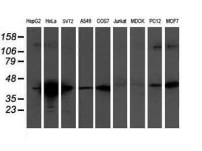 TMOD1 / Tropomodulin 1 Monoclonal Antibody