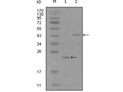 EPHA8 / EPH Receptor A8 Monoclonal Antibody