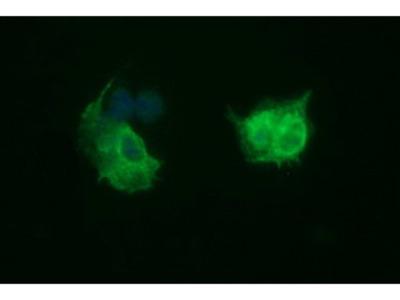 TUBB2B / Tubulin Beta 2B Monoclonal Antibody
