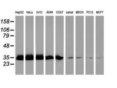 EXOSC7 Monoclonal Antibody