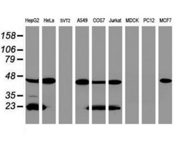 SCAD / ACADS Monoclonal Antibody