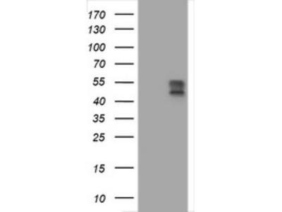 BTLA / CD272 Monoclonal Antibody