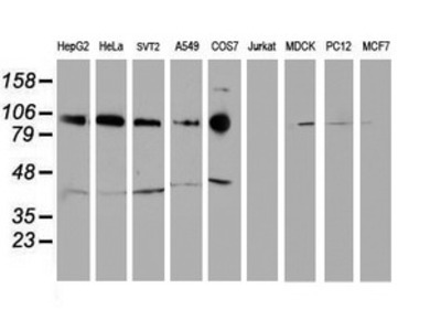 CDH2 / N Cadherin Monoclonal Antibody