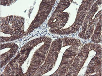 BCL2L1 / BCL-XL Monoclonal Antibody