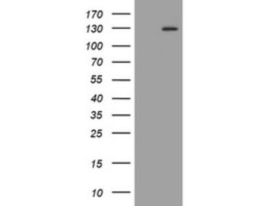 FGFR3 Monoclonal Antibody