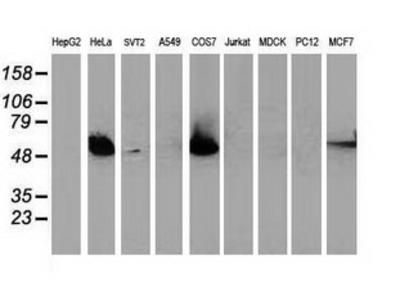 TP53 / p53 Monoclonal Antibody