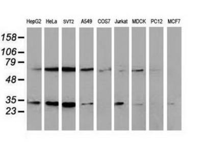 SSX1 Monoclonal Antibody