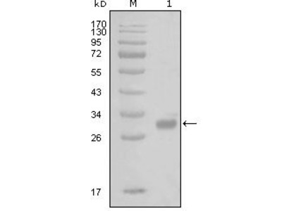 F2R / Thrombin Receptor / PAR1 Monoclonal Antibody