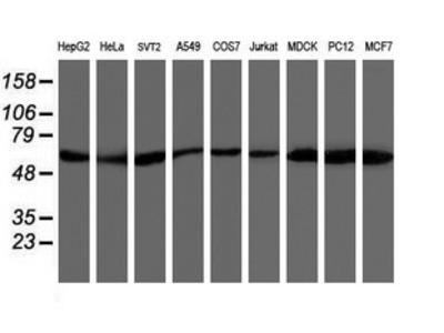 AKT1 Monoclonal Antibody