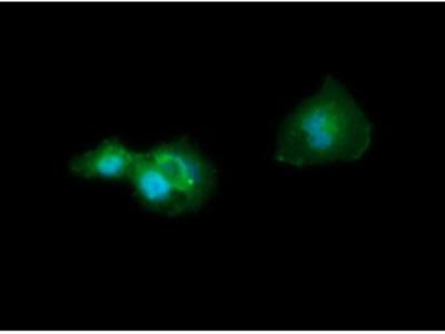 CD33 Monoclonal Antibody