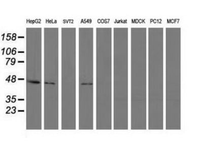PIP4K2A / PIPK Monoclonal Antibody