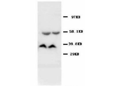 AMD / AMD1 Antibody