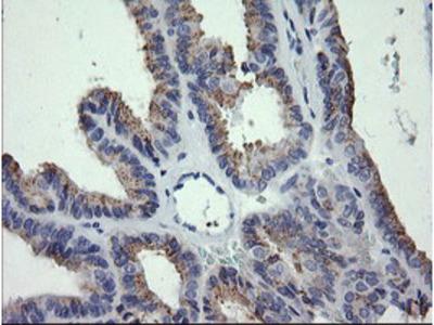 CTAG1B / NY-ESO-1 Monoclonal Antibody