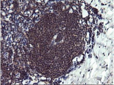 PPIL3 Monoclonal Antibody