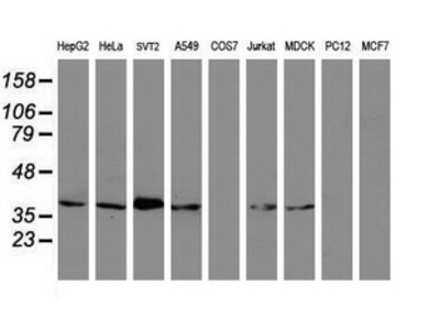 MAGEB1 Monoclonal Antibody