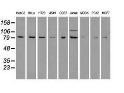 BRAF / B-Raf Monoclonal Antibody