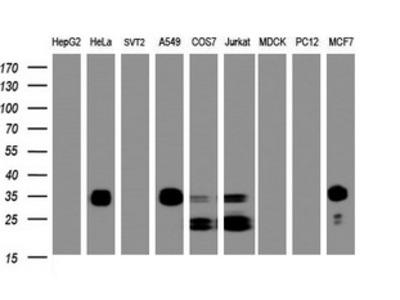 PPT1 / CLN1 Monoclonal Antibody