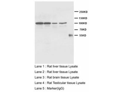 CDH2 / N Cadherin Antibody