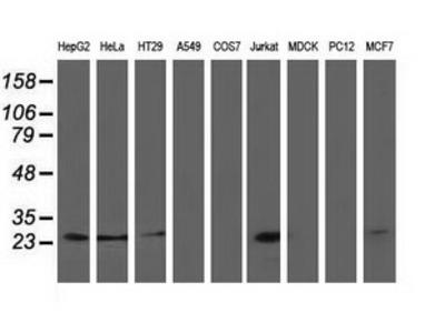PYCRL Monoclonal Antibody