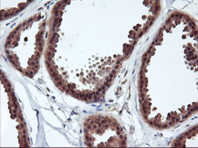 RABL2A Monoclonal Antibody