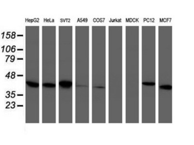 TBCC Monoclonal Antibody