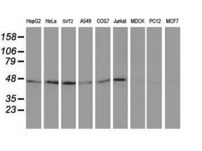 TUBB4 / Tubulin Beta 4 Monoclonal Antibody
