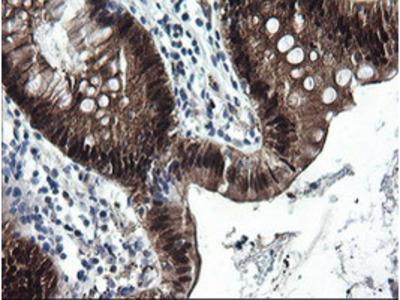 CMPK / CMPK1 Monoclonal Antibody