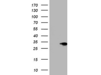 SIX1 Monoclonal Antibody