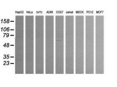 ALDH1A3 Monoclonal Antibody