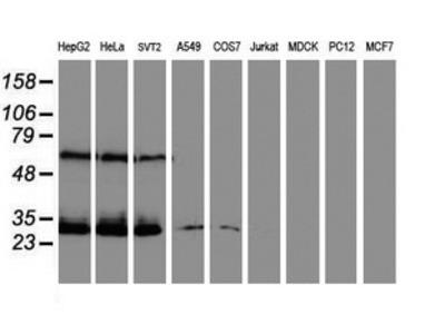 CENPH / CENP-H Monoclonal Antibody