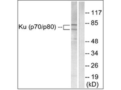 anti Ku70/80 (XRCC6/5) (C-term)