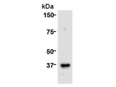 anti CDCA8 / Borealin (1-280)