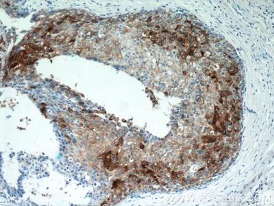 Clusterin antibody