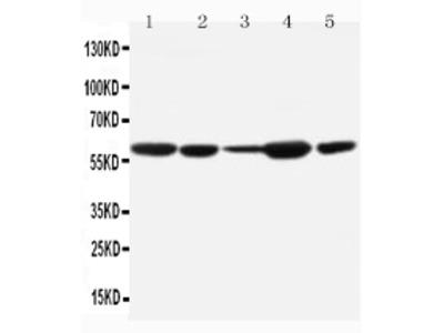 Anti-MDM2 Antibody