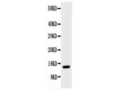 Anti-Estrogen Inducible Protein pS2/TFF1 Antibody