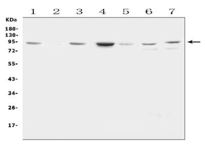 Anti-Factor VIII/F8 Antibody