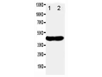Anti-NDRG1 Antibody