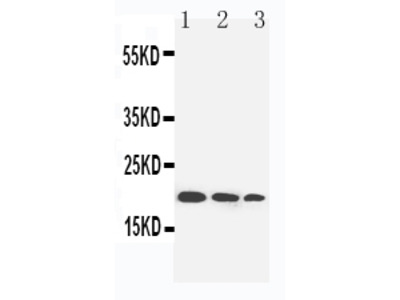 Anti-IL10 Antibody