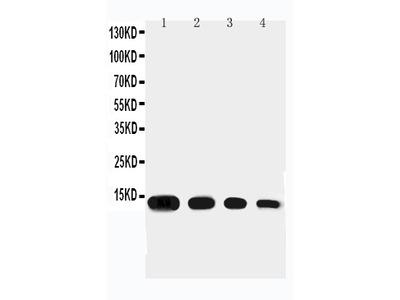 Anti-Eotaxin/CCL11 Antibody