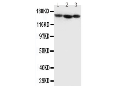 Anti-Collagen IV/COL4A1 Antibody