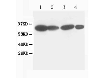 Anti-Catenin Gamma (Plakoglobin) Antibody (Monoclonal, 15F11)