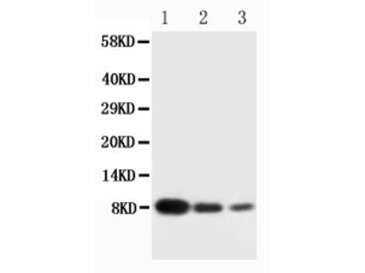 Anti-Platelet factor 4 PF4 Antibody