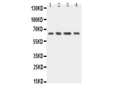 Anti-uPA Receptor/PLAUR Antibody