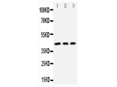 Anti-DAP Kinase 2/DAPK2 Antibody