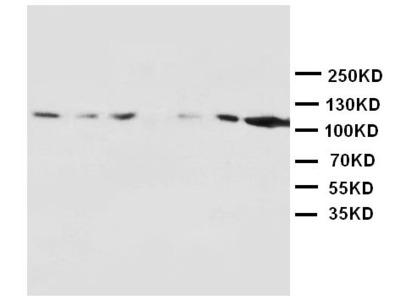 Anti-NMDAR1/GRIN1 Antibody