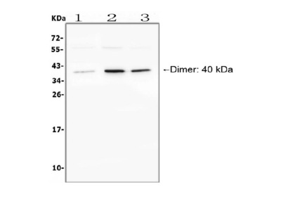 Anti-BAFF Receptor/TNFRSF13C Antibody